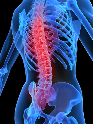 Spine Disorders and Conditions