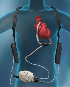 Illustration of HeartMate II Left Ventricular Assist Device