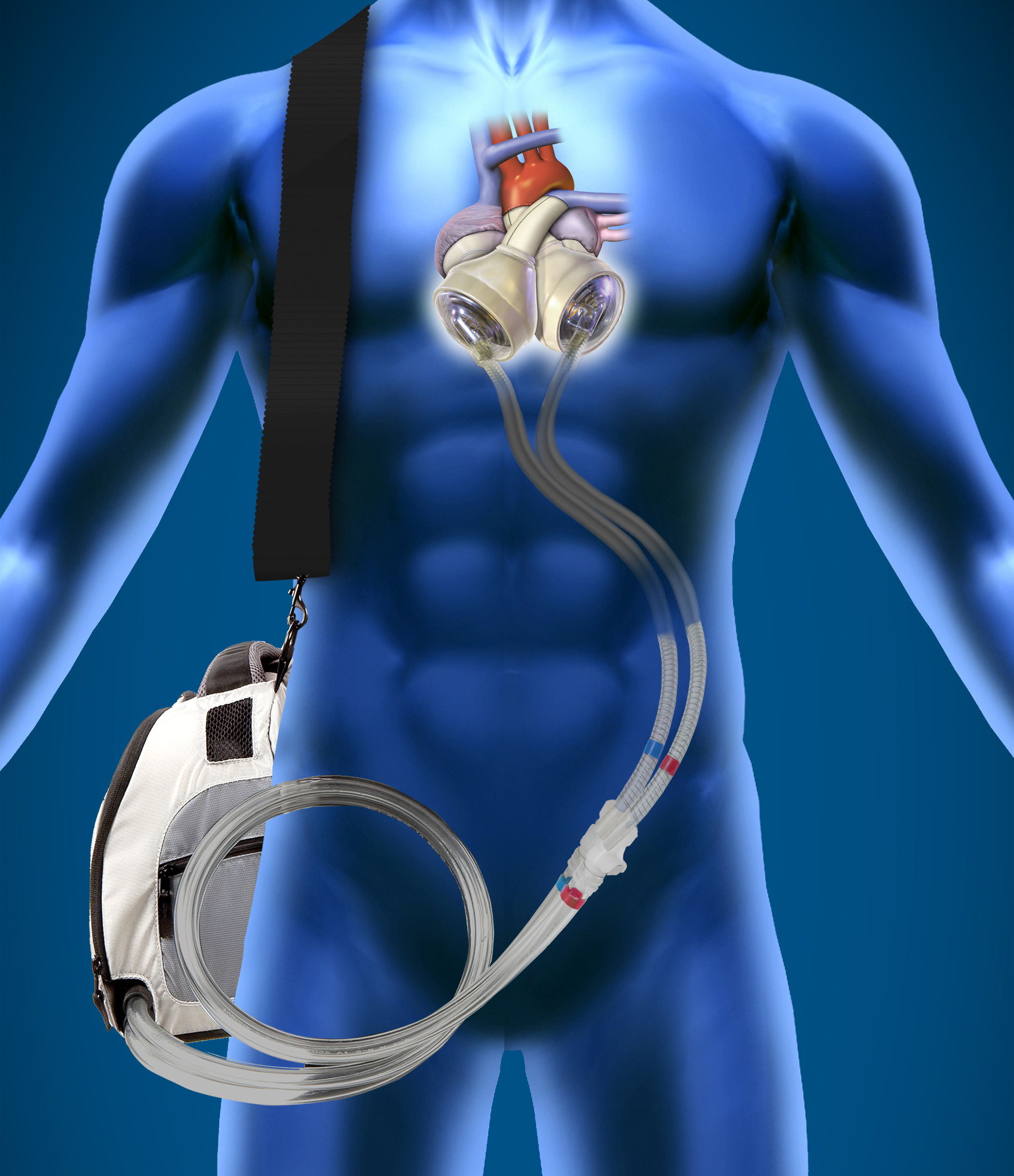 Illustration of SynCardia Total Artificial Heart