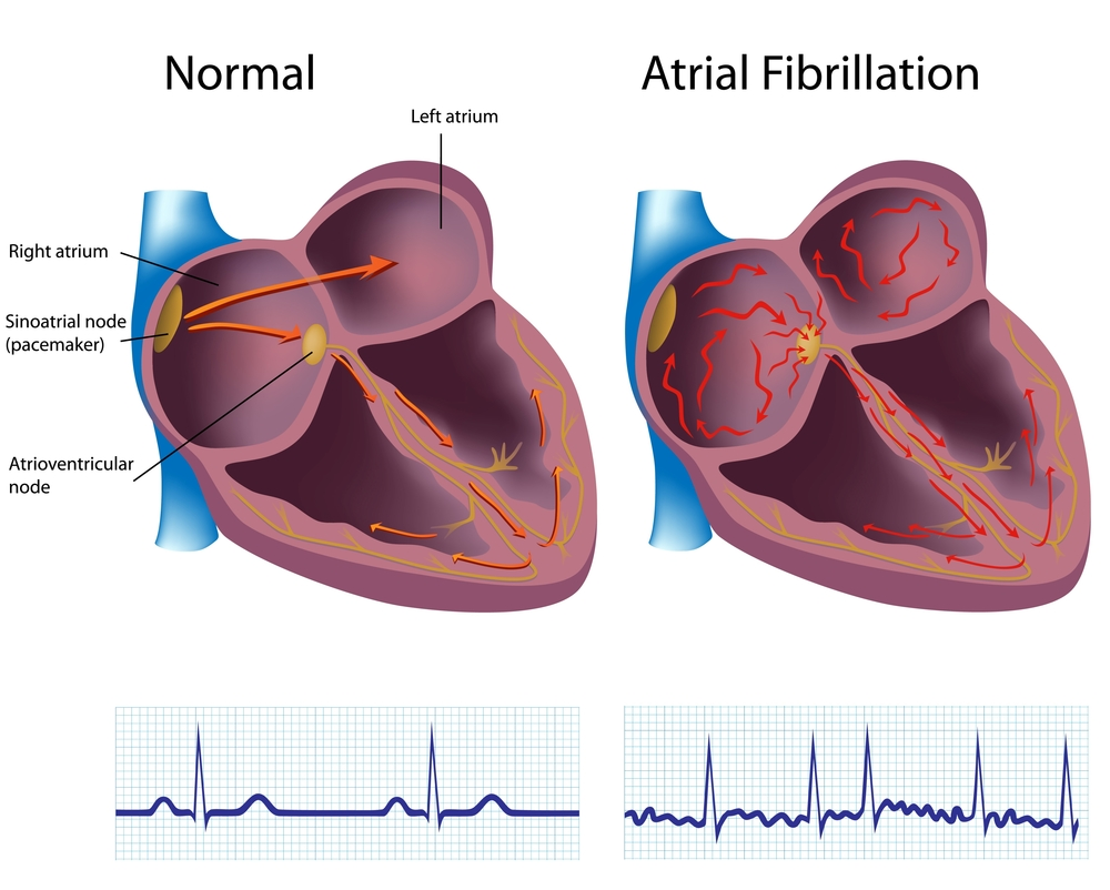 Diagram of a normal heart and a heart with AFib