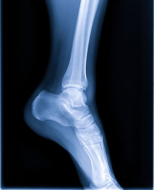 X-ray image of an ankle