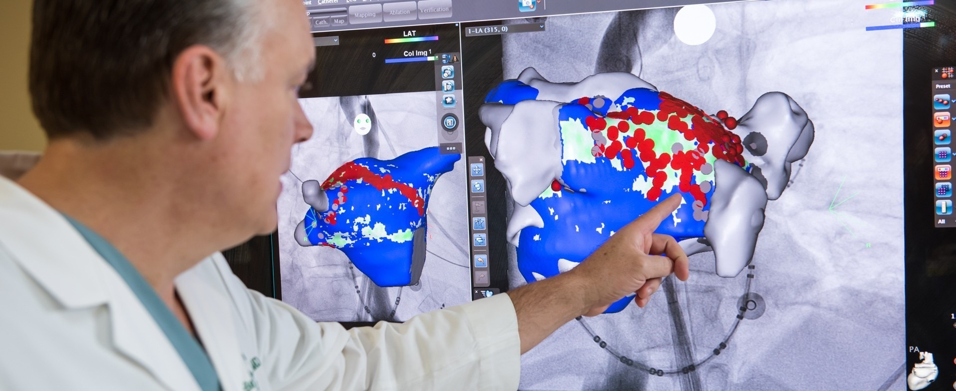 Doctor pointing at a digital image of atrial fibrillation (AFib)