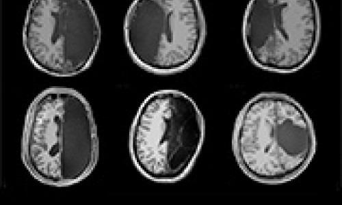 brain morph