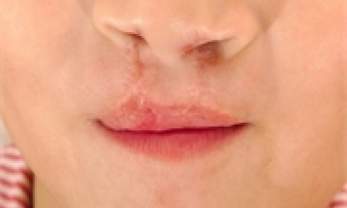 cleft lip