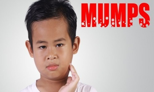 "Image of a young boy and the wording ""MUMPS"" next to him"