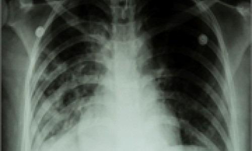 tuberculosis xray