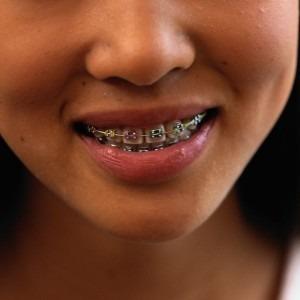 oral braces