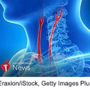 Treatment to Ward Off Stroke Less Effective in Women
